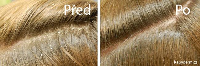 lupy ve vlasech jak odstranit