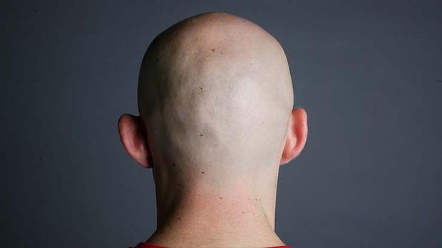 Padání vlasů u mužů