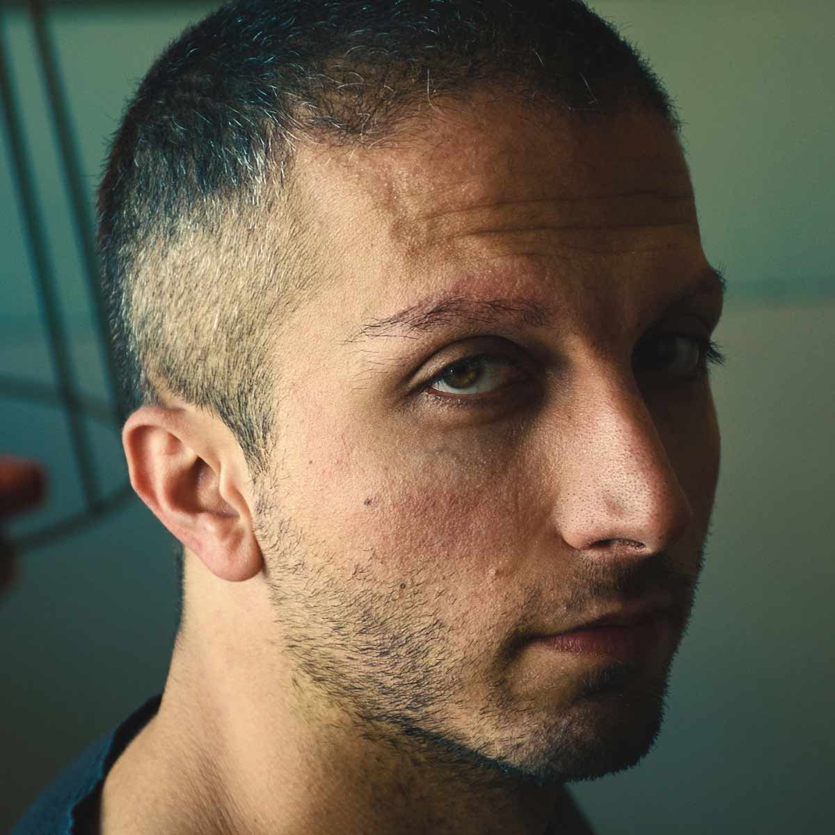 seboroicka_alopecie_seborea
